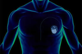 pacemaker chambre pacemaker chambre 28 images stimulateur cardiaque wikip 233