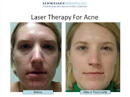 best blue light for acne blue light treatment for acne does accutane cure acne for good how