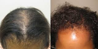 african american hair transplant hair transplant before and after photos african americans hair