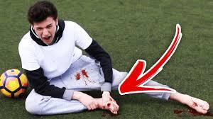 Challenge Injury Barefoot Vs Football Challenge Injury Warning