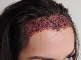 womans hair thinning on sides trauma of hair loss in women and solution hair wizards