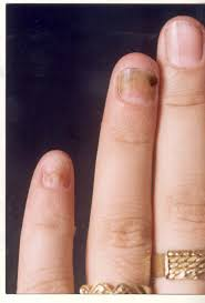 topical calcipotriol therapy in nail psoriasis a study of 24