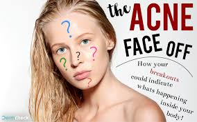 Chinese Face Mapping The Acne Face Off How The Chinese Medicinal Face Map Affects You