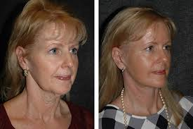 haircuts for sagging jaw line mini face lift face lift