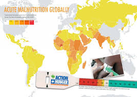 global malnutrition action against hunger