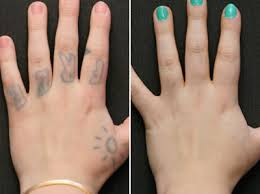 tattoo removal in worcester and stoneham ma
