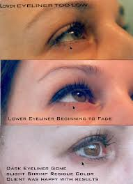 tattoo removal eyebrows eyeliner lips by saline and clay