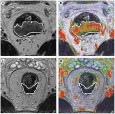 mri for assessing and predicting response to neoadjuvant treatment