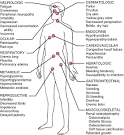 Systemic effects of <b>uremia</b>.