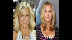 lara spencer plastic surgery youtube