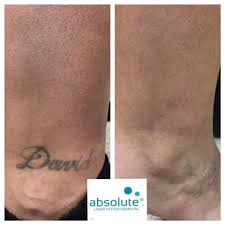 picosure tattoo removal laser tattoo removal pinterest