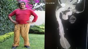 pria pemilik organ intim terpanjang dan terbesar ini mengaku