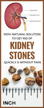 100 pics solution cuisine 100 solution to get rid of kidney stones quickly and
