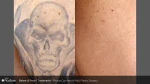 picosure laser tattoo removal wave plastic surgery