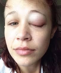 eye tattoo horror story fail catt gallinger