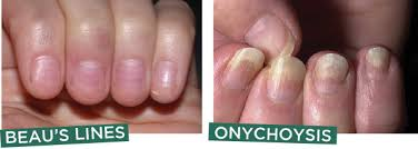 about nail about nail