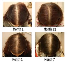 best haircuts for alopecia pharmacy talks treatments and healthy maintenance of hair loss