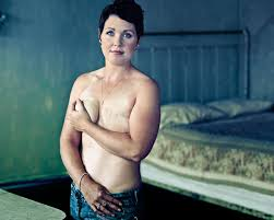 bare breast breast cancer laid bare by photographer arts and theatre