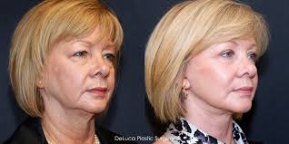 before u0026 after facelift on face with sunken cheeks and jowls