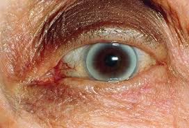Can Cataracts Cause Blindness Prevent Blindness America I Tek Vision Centre In Noida India