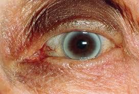 Blindness In The World Prevent Blindness America I Tek Vision Centre In Noida India