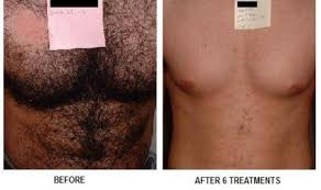 how much does laser hair removal cost on back laser hair removal at suddenly slimmer med spa phoenix scottsdale