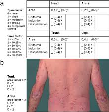 sun ls for psoriasis for sale the skin in psoriasis assessment and challenges