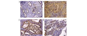 role of numb expression and nuclear translocation in endometrial