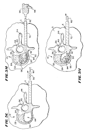 patent us6248110 systems and methods for treating fractured or