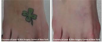 how successful is tattoo laser removal tattoo collection