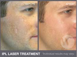 intense pulsed light therapy intense pulsed light ipl washington dc and chevy chase md
