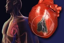 Anatomy Of Human Heart Pdf Heart Disease France Pdf Ppt Case Reports Symptoms