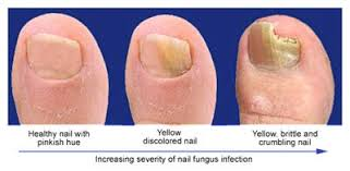 zetaclear review is this toenail fungal therapy really worth buying