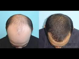 black seed for hair loss baldness permanent treatment naturally youtube