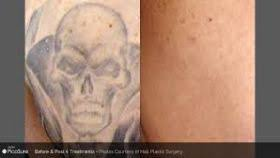 picosure tattoo removal raleigh nc tattoo design