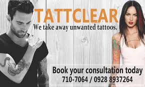 tattoo prices manila tattclear manila tattoo removal clinic home facebook
