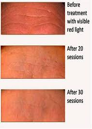 does at home red light therapy work red light therapy sun tanning