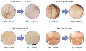 palomar laser hair removal reviews laser hair removal