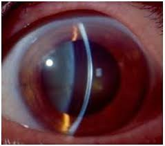 eyes sensitive to light treatment characterized by sensitivity to light fuchs dystrophy is known to