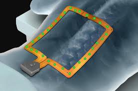 Spine Map Spinemap 3d Software Stryker Nse U0026 Navigationstryker Nse