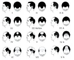 male pattern baldness hairstyles hair loss in men nuhart the home of hair restoration transplant
