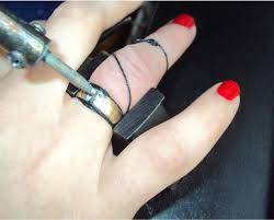 Removable by File Soldering Of Non Removable Ring On The Hand Jpg Wikimedia