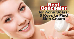 best concealer for acne scars 5 keys to find skin cream