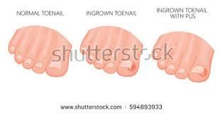 ingrown toenail stock images royalty free images u0026 vectors