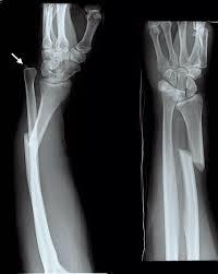 Fibular Avulsion Galeazzi Fracture Wikipedia