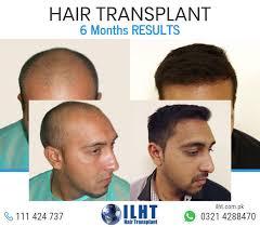 prescreened hair transplant physicians the 25 best hair transplant surgery ideas on pinterest best