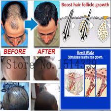 aliexpress com buy 3pc natural hair loss alopecia areata