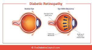Diabetic Blindness Glaucoma And Diabetes Can Diabetes Affect Your Eyes