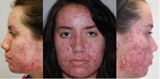 Light Therapy For Skin Light Therapy Premier Dermatology