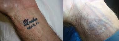 tattoo removal services in sydney